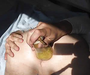 Extreme fisting amateurs gall
